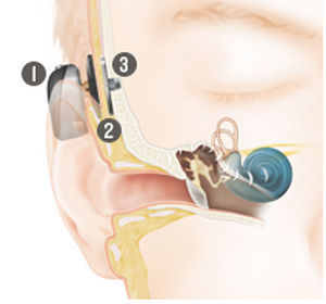 implante osteointegrado