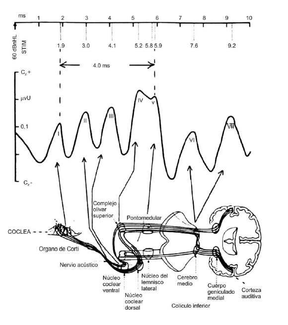 Potenciales Evocados Auditivos De Tronco Cerebral Peatc Audioconsulta Audífonos